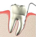 Gum Treatment  Procedures