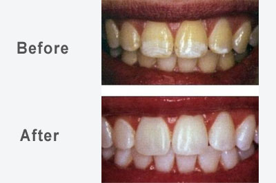 Teeth Whitening Gumcare Dentist Khar Dentist Bandra Dentist