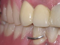 Restoring Broken Teeth