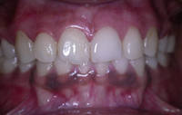 Depigmentation of Gums