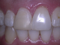 Treating Minor Tooth Discolouration