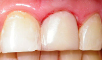 Veneering Discoloured Teeth
