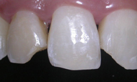 Repair of Cracked Teeth Case 1