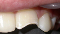 Repair of Cracked Teeth Case 2