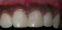 Repair of Cracked Teeth Case 3